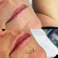 Filler labbra - Dott. Marco Ferretti