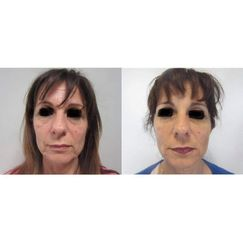 Lifting viso - Dott.ssa Sara Russo