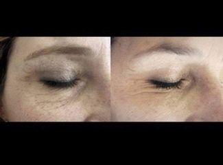 Eliminare occhiaie - Dott.ssa Sara Russo