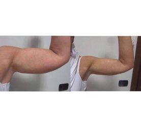 Lifting braccia - Dott.ssa Sara Russo