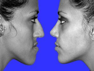 Chirurgia Maxillo facciale-760829
