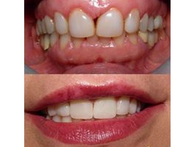 Aesthetic Oral Center - Dr.Luongo
