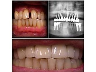 Dentisti-769809