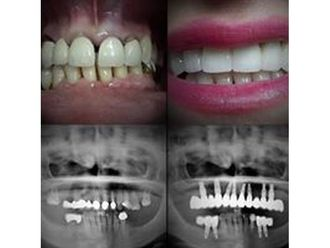 Dentisti-769812