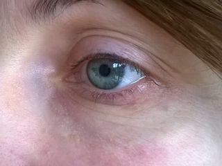 trattamento medico di borse ed occhiaie :dopo