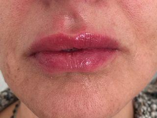 Labbra dopo trattamento con 1 fiala di ialuronico lip