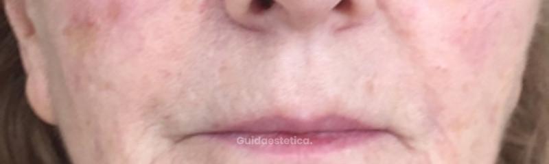 Rimodellamento dello zigomo e della guancia con acido ialuronico bifasico