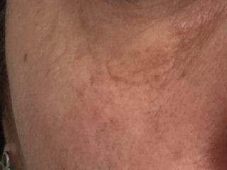 Immagine dopo 1 trattamento Hifu