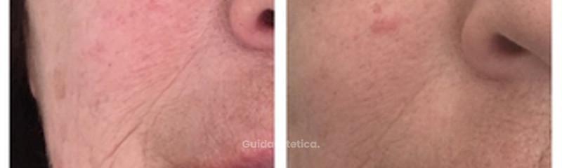 Prima e dopo 1 trattamento di needle shaping