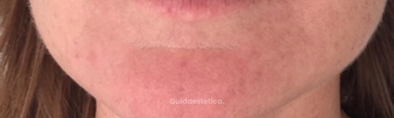 Trattamento con botox e acido ialuronico prima