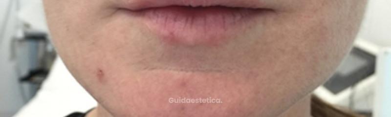 Botox e acido ialuronico dopo