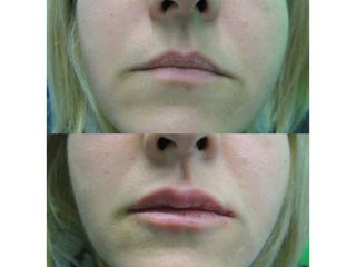 Dott.ssa Arianna Tinti - Filler labbra