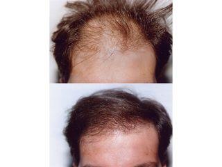 Dott.ssa Arianna Tinti - Trapianto capelli