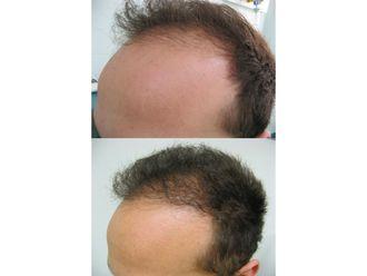 Trapianto capelli-771412