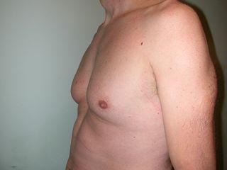 Ginecomastia prima laterale