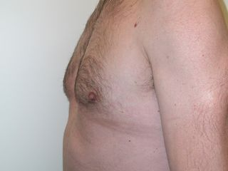 Ginecomastia dopo laterale