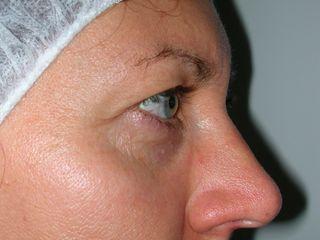 Blefaroplastica superiore laterale prima