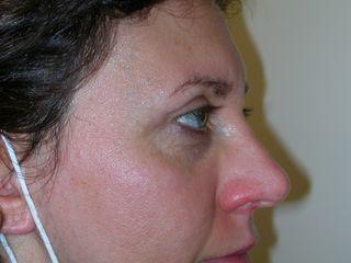 Blefaroplastica superiore laterale dopo