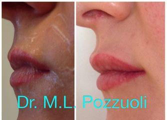 Aumento labbra prima e dopo