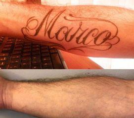 Rimozione tatuaggi - Dott. Riccardo Testa