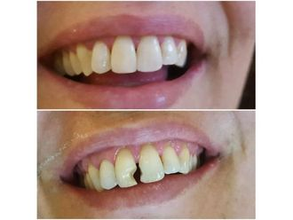 Dentisti-767656