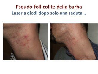 Laserterapia-748828