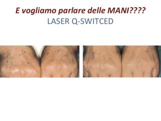 Laser QSwitched prima dopo