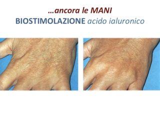 Ringiovanimento  mani - Dott. Elena Fasola