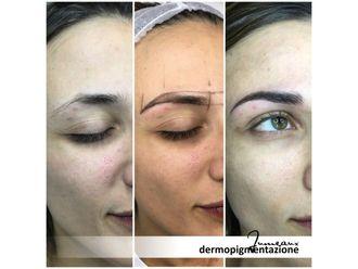 Dermopigmentazione-296983