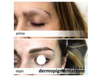 Dermopigmentazione-296985