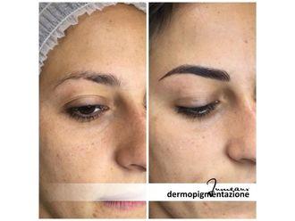 Dermopigmentazione-296986