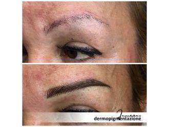Dermopigmentazione-296987