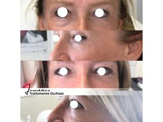 Trattamento Occhiaie
