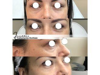 Eliminare occhiaie-296993