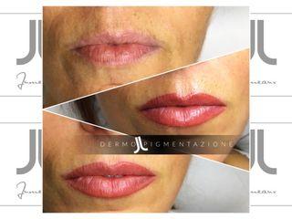 Jumeaux dermopigmentazione labbra