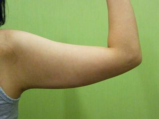 Lipo braccia post