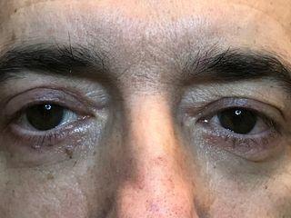 Risultato blefaroplastica completa