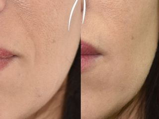 Solchi Nasogenieni prima e dopo