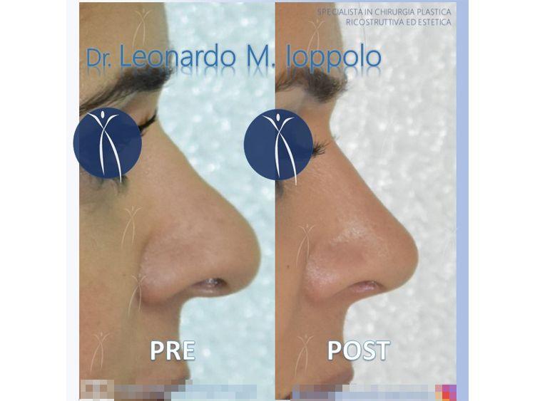 Dott. Leonardo Michele Ioppolo
