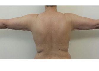 brachioplastica dopo