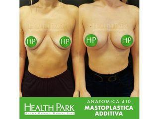 Mastoplastica anatomica prima e dopo