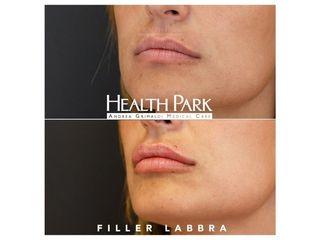 Filler labbra - Health Park- Andrea Grimaldi Medical Care