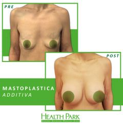 Mastoplastica additiva - Health Park- Andrea Grimaldi Medical Care