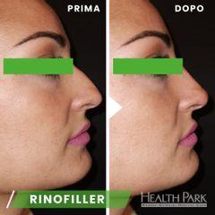 Rinofiller - Health Park- Andrea Grimaldi Medical Care