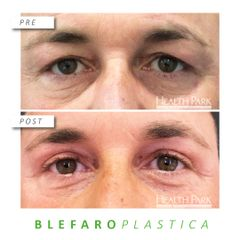 Blefaroplastica - Health Park- Andrea Grimaldi Medical Care
