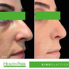 Rinoplastica - Health Park- Andrea Grimaldi Medical Care
