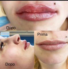 Filler labbra - Silvercare Medical Center - Dott. Antonio Romeo