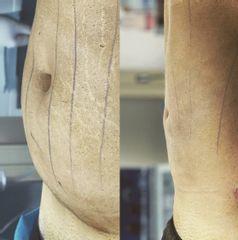 Liposuzione - Silvercare Medical Center - Dott. Antonio Romeo