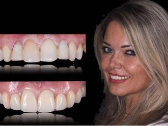 Ortodonzia-774055