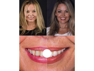 Dentisti-774056